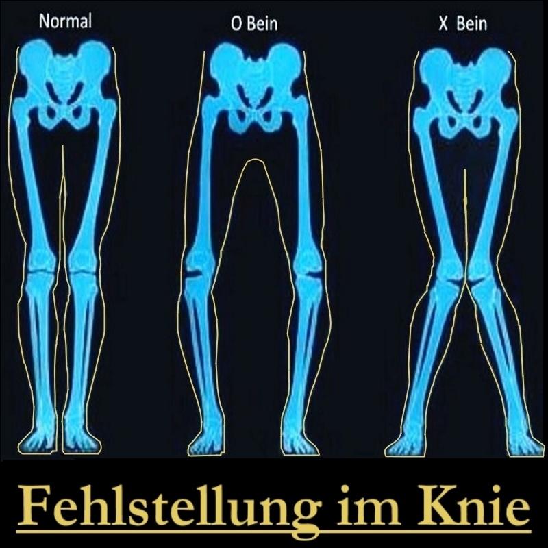 Beinfehlstellungen X-Bein und O-Bein